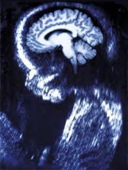 foetal brain scan