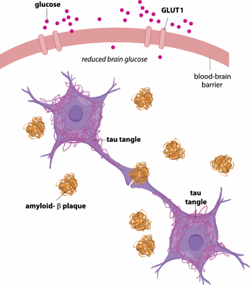 amyloid-beta plaques and tau tangles